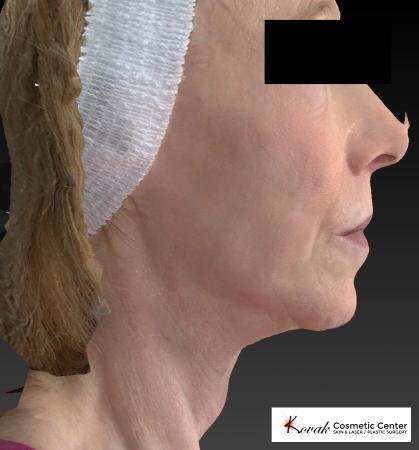 Sculptra®: Patient 1 - After 2