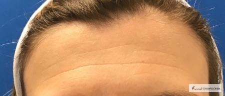 Restylane Silk for Forehead Lines on 43 year old female - Before Image