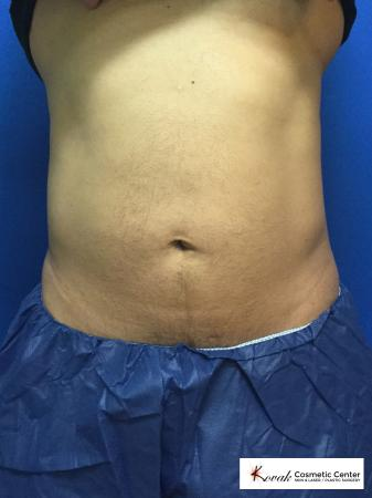 Emsculpt of the abdomen on a 50 year old male - Before Image