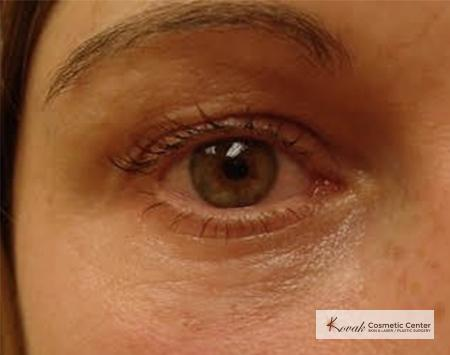 Injectables - Face: Patient 2 - After