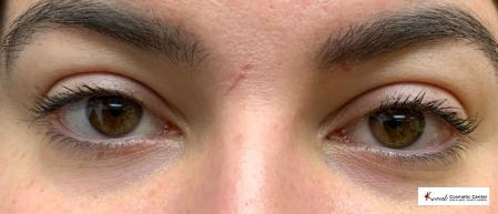 Dark Circle Treatment using Restylane Silk on a 23 year old Female - Before Image