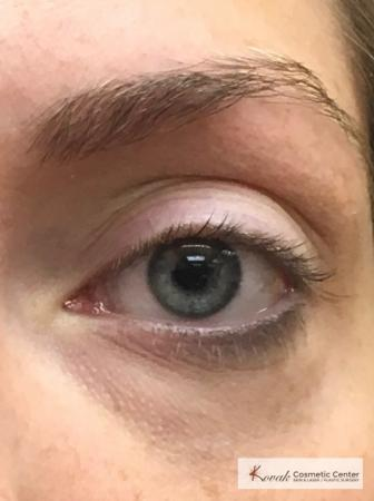 Dark Circle Treatment with Restylane Silk on a 29 year old female - Before and After 2