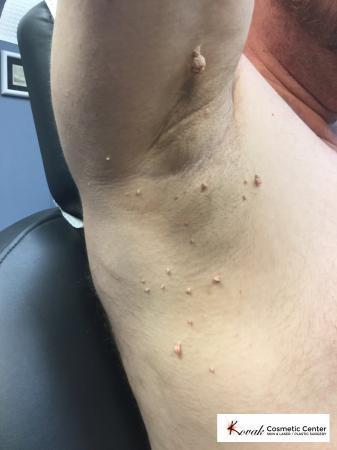 Lumps & Bumps: Patient 1 - Before Image