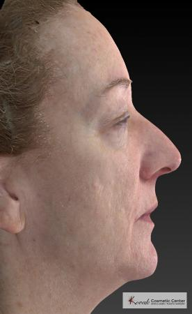 Tyte And Bryte – Face: Patient 6 - After Image 4