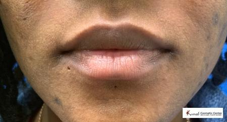 Lip filler using Juvederm on a 31 year old female - Before 1