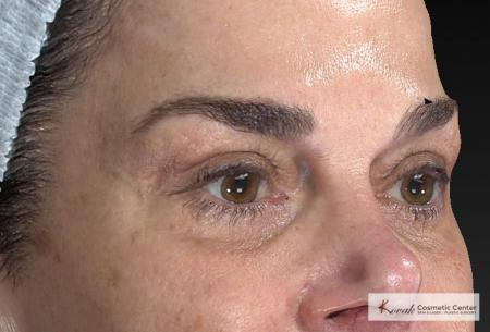 Laser Skin Resurfacing - Face: Patient 2 - After Image 5
