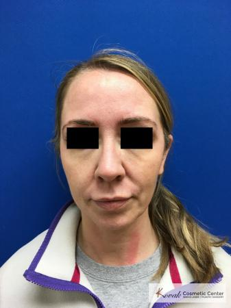 Injectables - Face: Patient 6 - Before Image