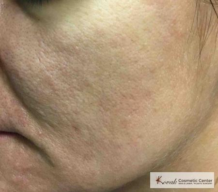 Acne Scars treated with Venus Viva on 35 year old woman - After Image