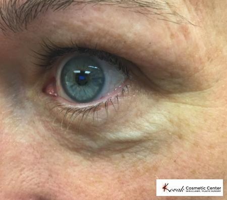 Eye Vein Treatment: Patient 2 - Before Image