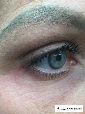 Eye Vein Treatment on a 39 year old female using the CoolTouch Varia - After