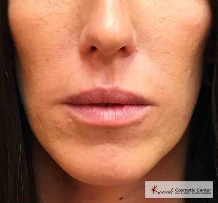 Injectables - Mouth: Patient 10 - Before Image
