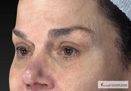 Laser Skin Resurfacing - Face: Patient 2 - Before Image 3
