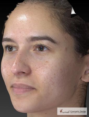 Venus Viva: Patient 3 - After Image 3