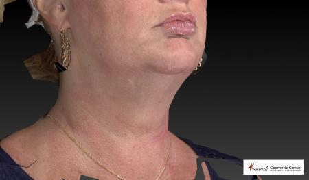 Kybella: Patient 1 - After Image 2