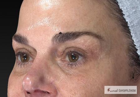 Laser Skin Resurfacing - Face: Patient 2 - After Image 3