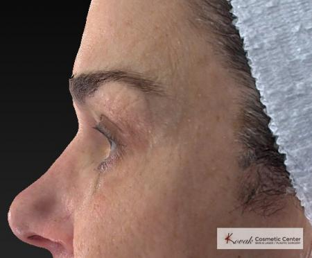 Laser Skin Resurfacing - Face: Patient 2 - After Image 2