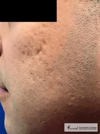 Acne Scars treated with Juvederm and Venus Viva on 35 year old male - Before Image