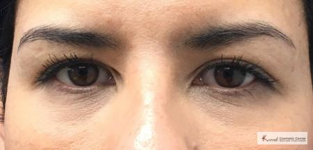 Restylane® Silk: Patient 14 - After Image