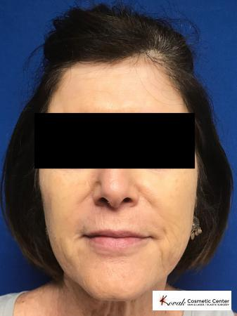 Sculptra treatment to add volume to a 63 year old female - After 1
