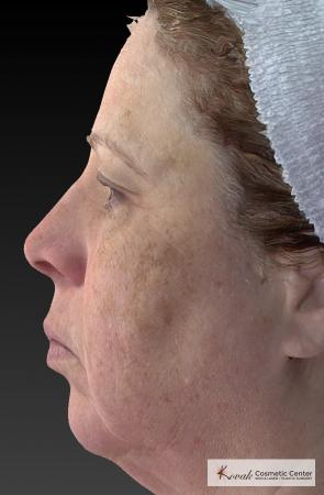 Tyte And Bryte – Face: Patient 3 - Before Image 2