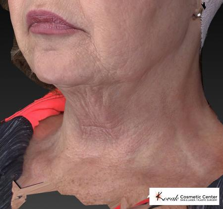 Kybella: Patient 2 - Before Image 3