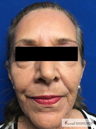 Full Face Laser Skin Resurfacing on a 70 year old woman - After Image