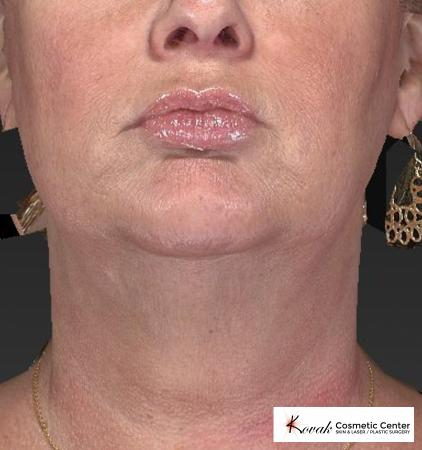 Kybella: Patient 1 - After Image 1