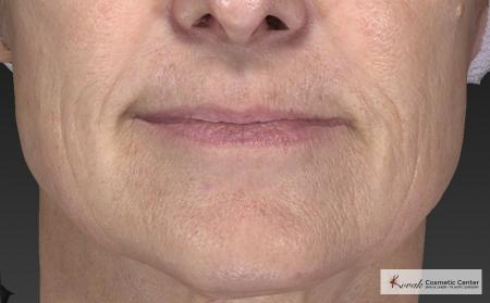 Injectables - Mouth: Patient 8 - After Image