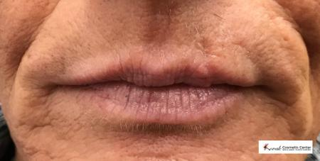 Injectables - Mouth: Patient 1 - After Image