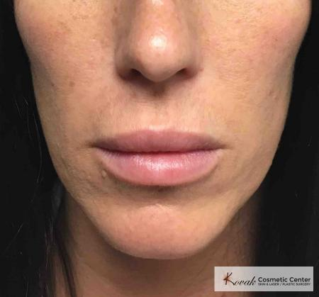 Injectables: Patient 8 - After Image