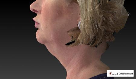 Kybella: Patient 1 - Before Image 4