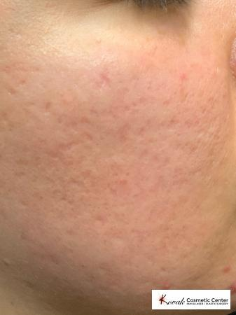 Acne Scars treated with Venus Viva on 30 year old female - After Image
