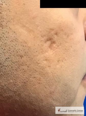 Acne Scars treated with Juvederm and Venus Viva on 35 year old male - Before and After Image 2