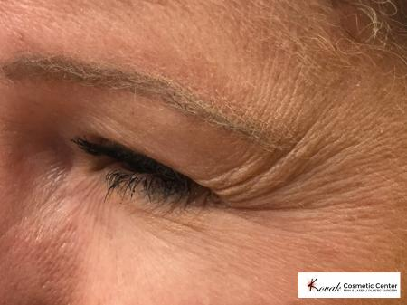 Botox for the eyes on a 40 year old woman - Before Image