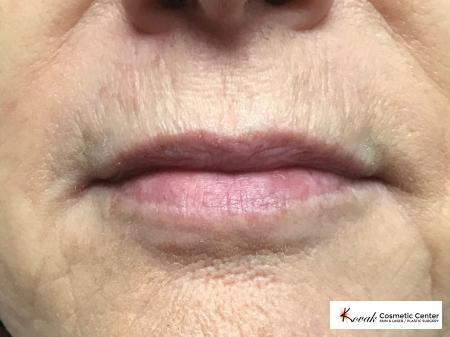 Restylane Silk for fine lines around the mouth on a 63 year old female - After Image