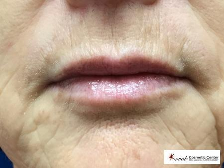Restylane Silk for fine lines around the mouth on a 63 year old female - Before Image