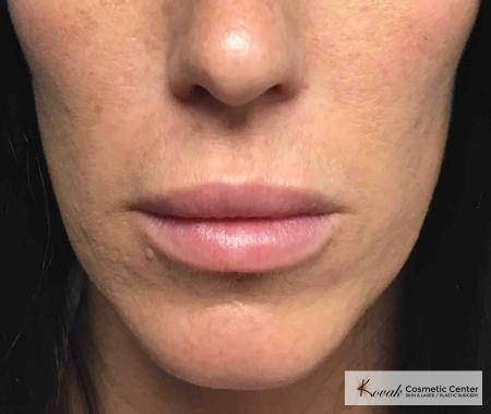 Juvederm Ultra: Patient 1 - After Image