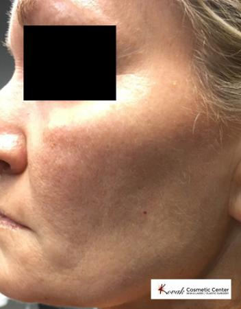 Silhouette Lift™: Patient 2 - After Image