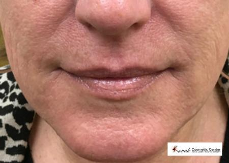 Restylane® Silk: Patient 4 - After Image