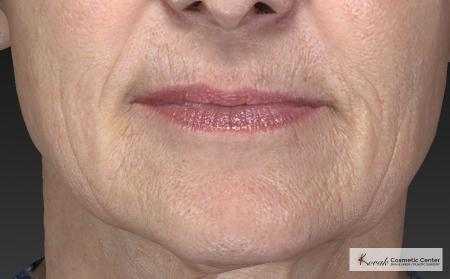 Injectables - Mouth: Patient 8 - Before Image