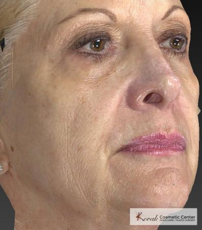 Injectables - Face: Patient 1 - Before and After 3