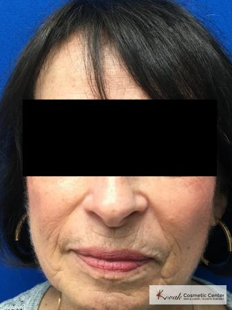 Sculptra for facial volume on a 71 year old female - After Image