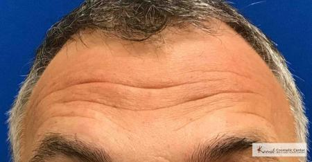 Volbella for Forehead Lines on a 52 year old male - After Image