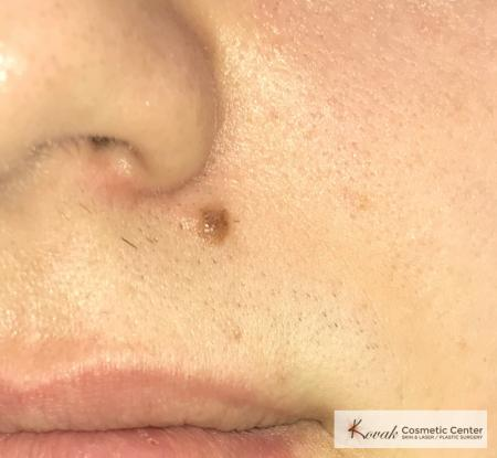 Mole Removal: Patient 3 - Before Image