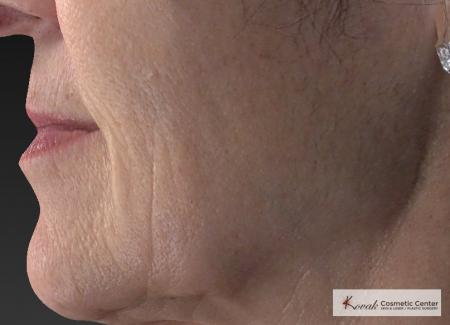 Injectables - Mouth: Patient 8 - Before Image 3