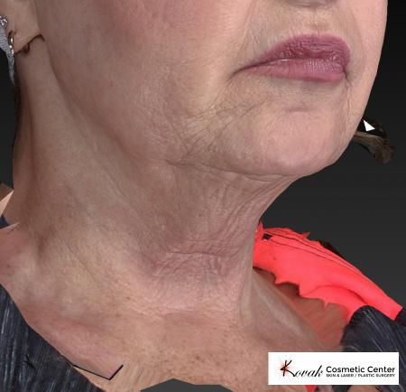 Kybella: Patient 2 - Before Image 2