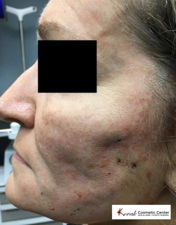 Silhouette Lift™: Patient 2 - Before Image
