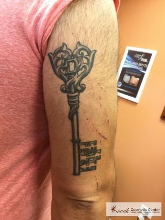 Tattoo Removal: Patient 4 - Before Image