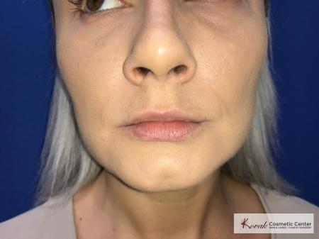 Restylane® Silk: Patient 12 - Before Image