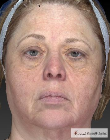 Tyte And Bryte – Face: Patient 3 - Before Image 4